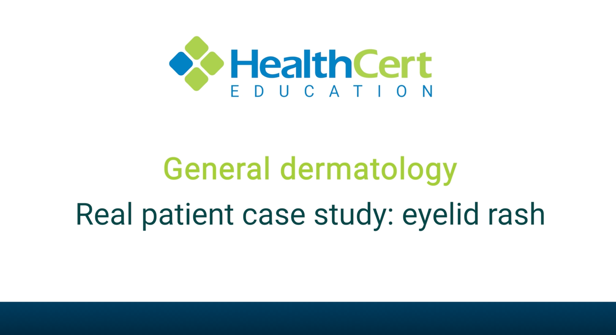 General dermatology - Real patient case study